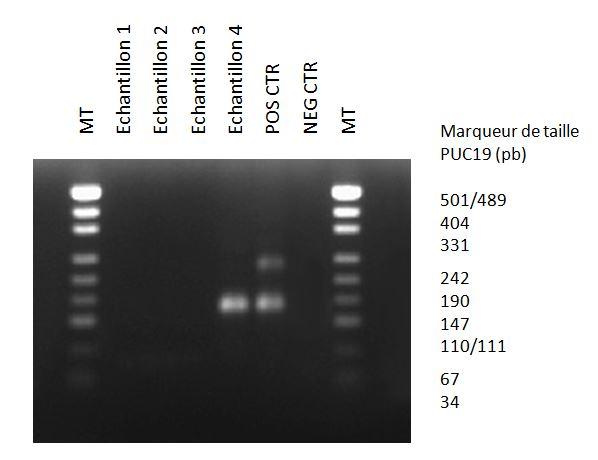 L'électrophorèse sur gel d'agarose, après PCR avec le kit MycoDiag, permet d'observer des bandes entre 121 et 230 pb, en cas de contamination par Mycoplasmes des surnageants de culture cellulaire.